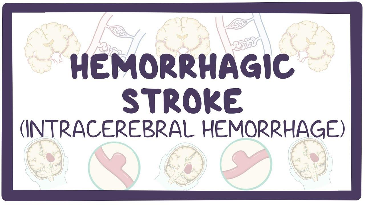 intracerebral hemorrhage osmosis