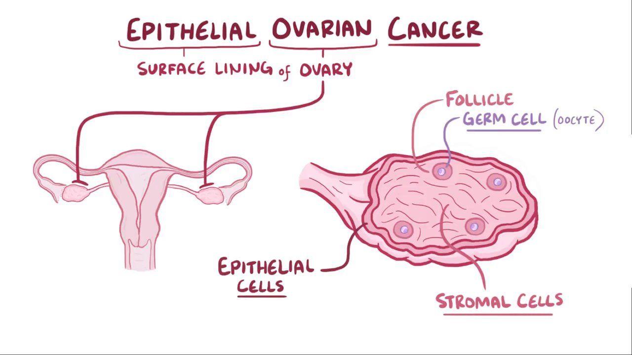 Cancerul ovarian. Simptome și factori de risc