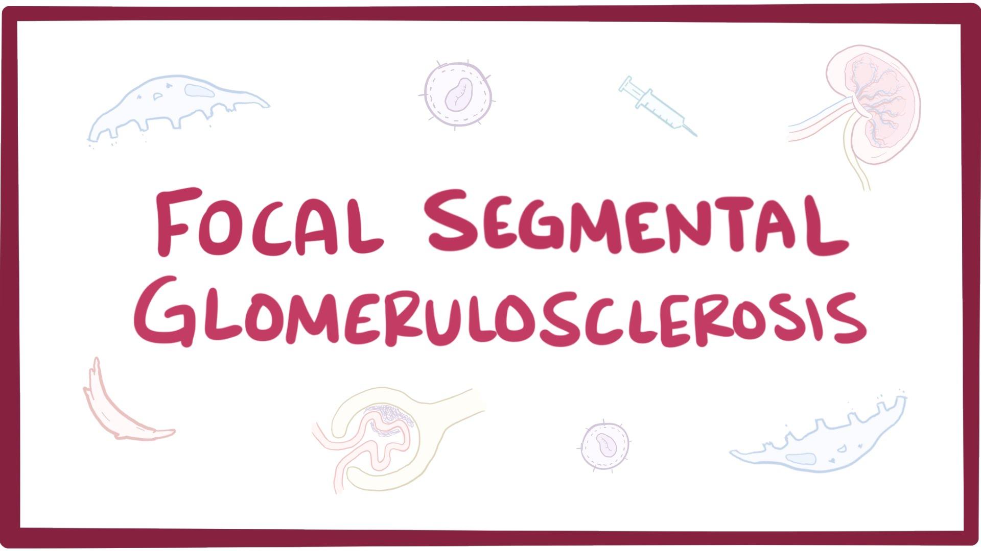 fokal segmentell glomeruloskleros