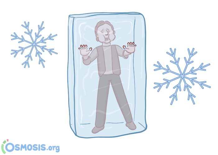 Man encased in a block of ice.