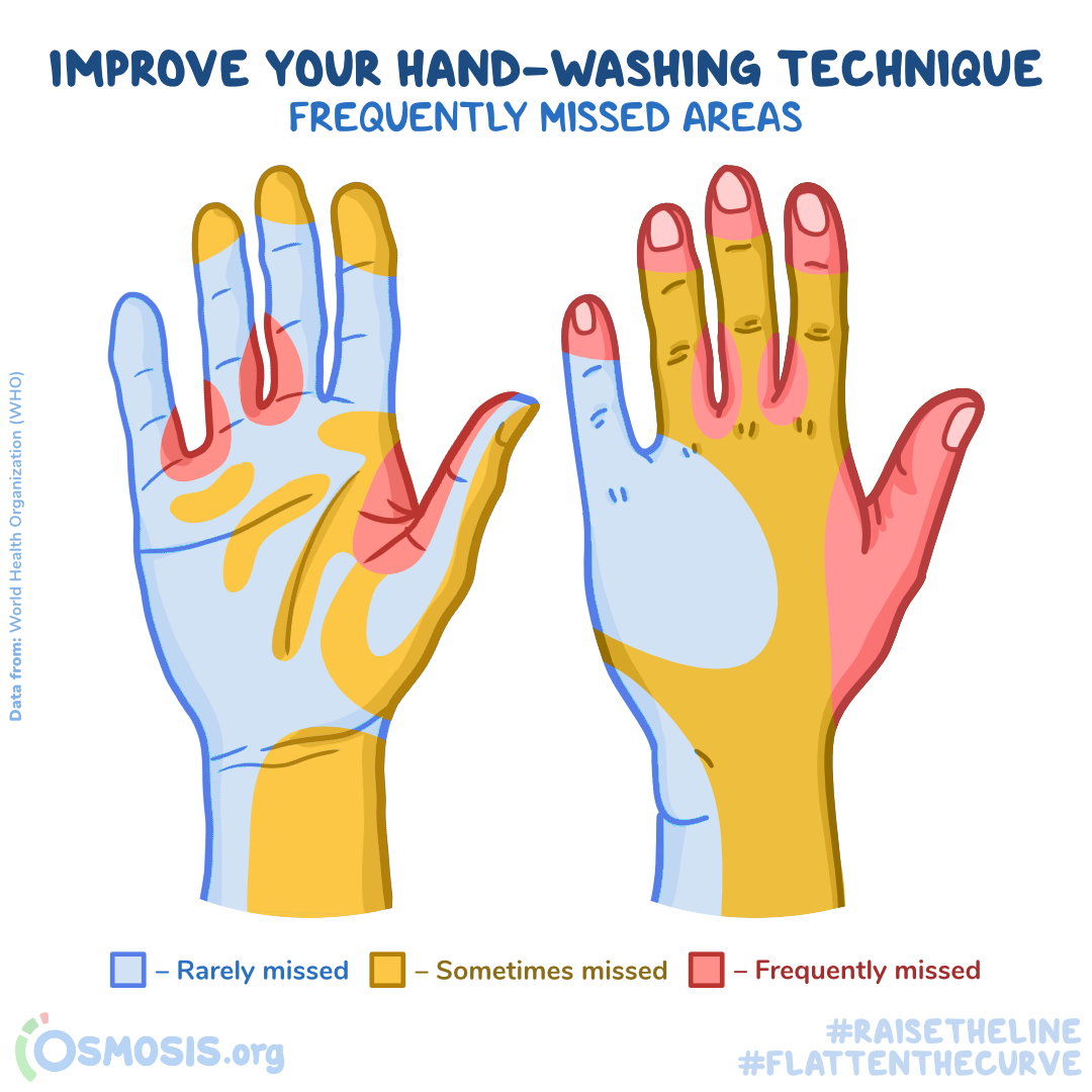 Osmosis infographic showing commonly-missed areas of the hand during handwashing.