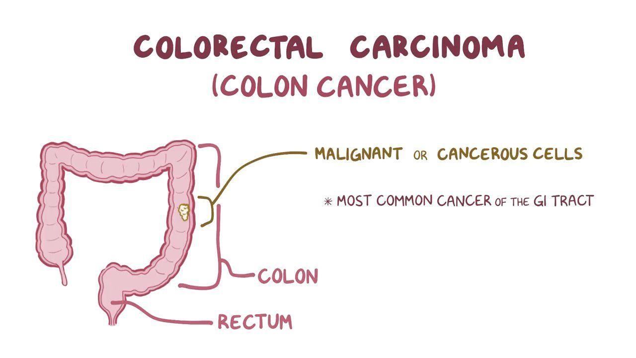 rectal cancer usmle)