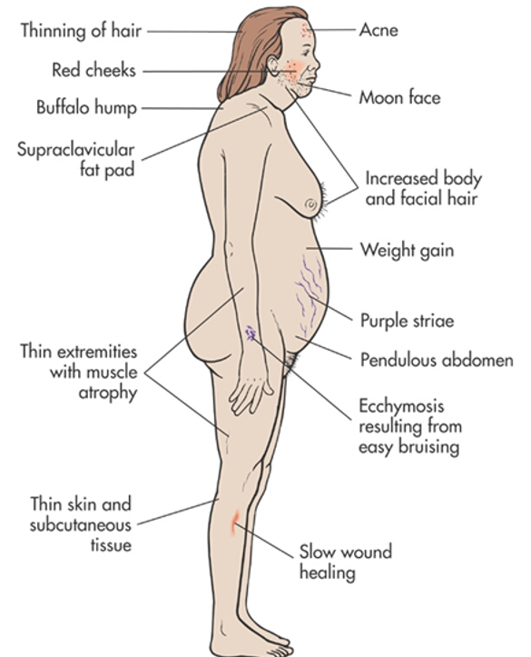 steroid hump