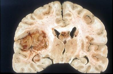 Wikipedia image of Glioblastoma Multiforme.