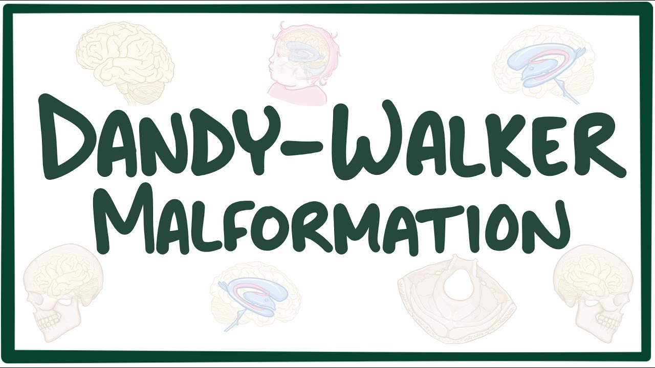 Dandy-Walker malformation - Osmosis Video Library