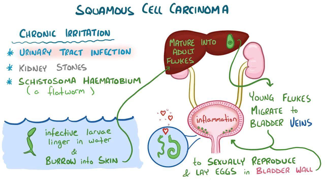 schistosomiasis osmosis human papillomavirus infection penyebab