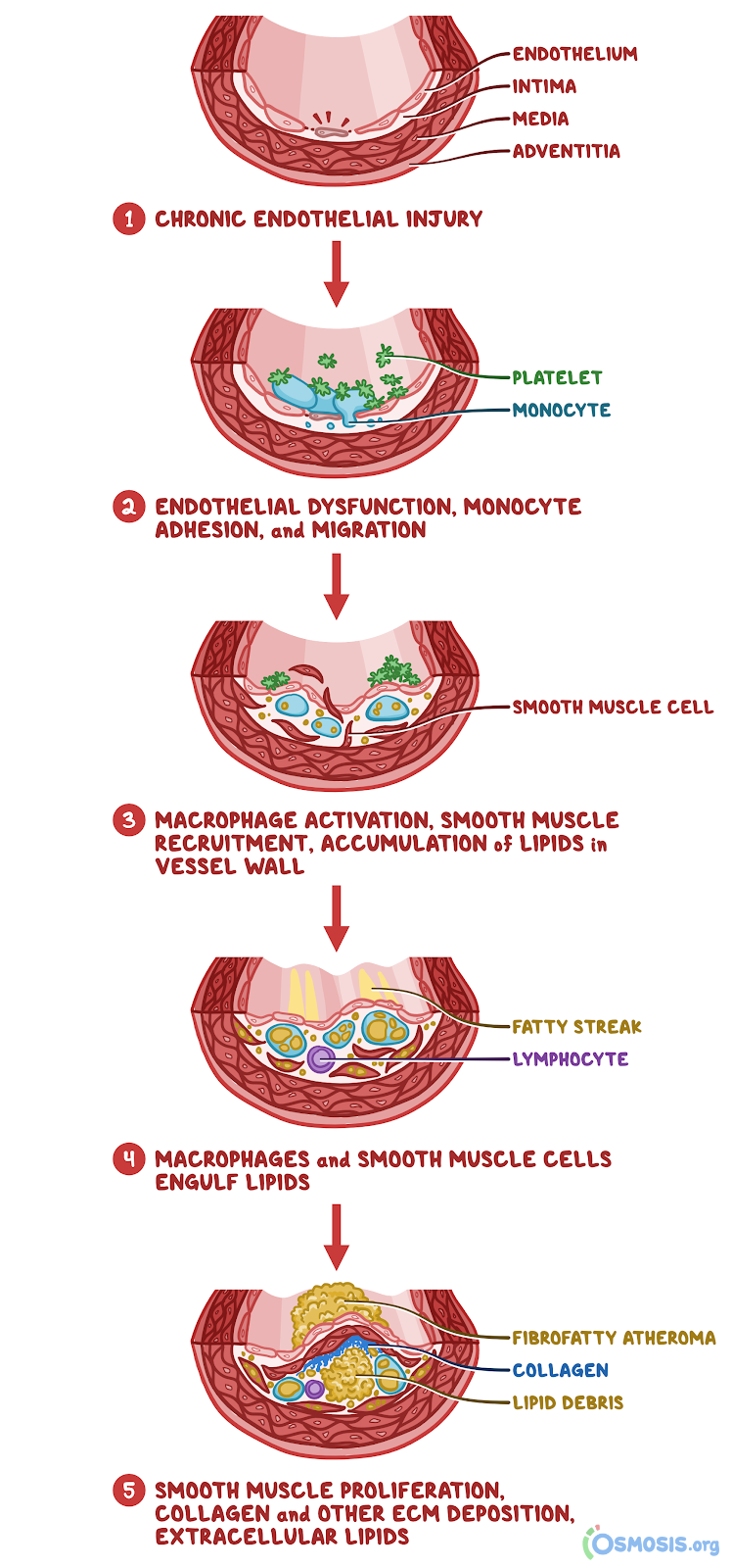 Osmosis illustration of the response-to-injury model.