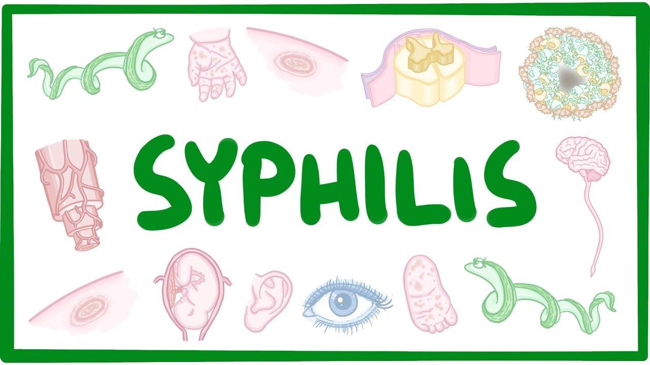Treponema pallidum (Syphilis)