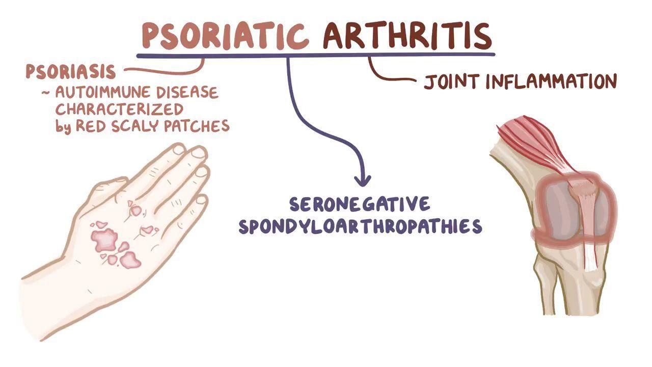 What causes psoriatic arthritis? এর ছবির ফলাফল