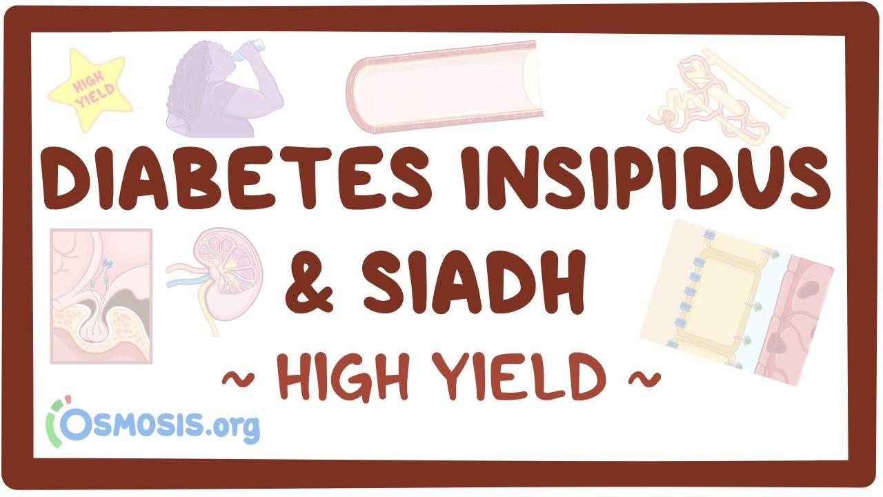 High Yield Diabetes Insipidus And Siadh